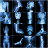 Workers' Compensation and Whole Body Injuries