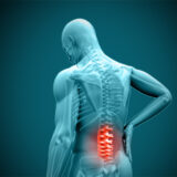 Does Back Pain Qualify for Disability?